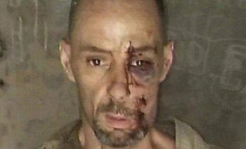 Martín Lanatta se queja de la comida en la cárcel de Ezeiza | Fuga de general alvear