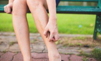 ¿Por qué a los mosquitos les gusta picar los tobillos? | Ciencia