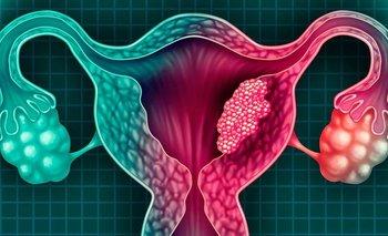 Cáncer de útero: qué es, cuáles son sus síntomas y cómo prevenirlo   Consejos de salud