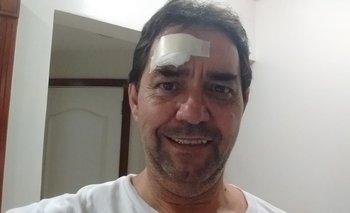 Copa América: asaltan y golpean a periodista argentino | América