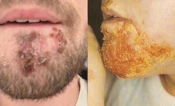 Usó una afeitadora equivocada y casi se muere | Salud