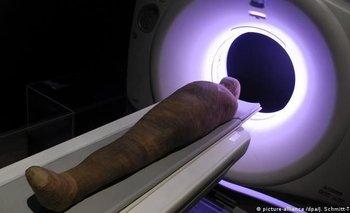 Usan rayos X en una momia y revelan secretos de hace 3000 años | Egipto