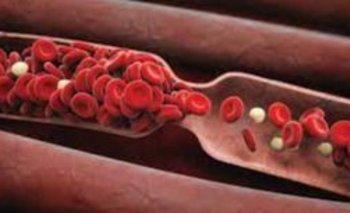 Qué es la trombosis: síntomas, factores de riesgo y tratamientos | Salud
