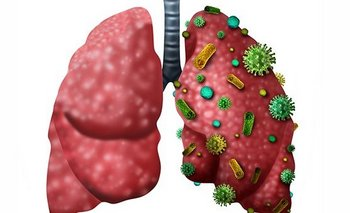 ¿Cuál es la diferencia entre neumonía y pulmonía? | Consejos de salud