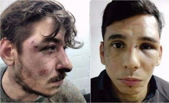 Imágenes del horror: así dejó la policía de Larreta a dos jóvenes por discutir sobre política   Policía metropolitana