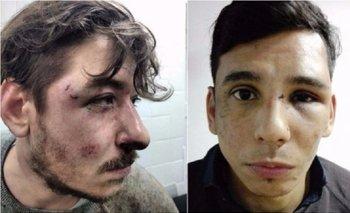 Imágenes del horror: así dejó la policía de Larreta a dos jóvenes por discutir sobre política | Policía metropolitana