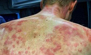 Dauphiné 2020: tormenta de granizo lastimó la espalda de un ciclista | Fenómenos naturales