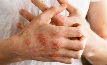 Qué hacer si tengo manos secas: cómo combatir la resequedad | Salud