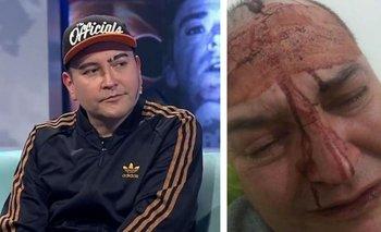 Leo García apareció en televisión tras el brutal ataque homofóbico | Televisión