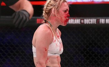 VIDEO: Terrible patada dejó a una luchadora KO e intervinieron los médicos | Mma