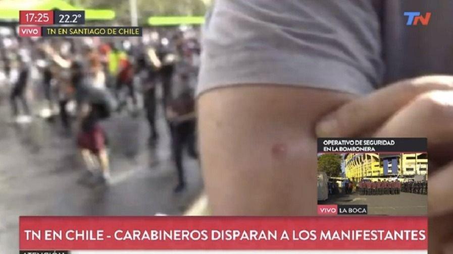 Le dispararon a un periodista de TN en las protestas de Chile