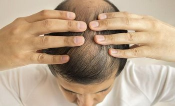 Alopecia o caída del cabello: causas y tratamientos de la enfermedad   Consejos de salud