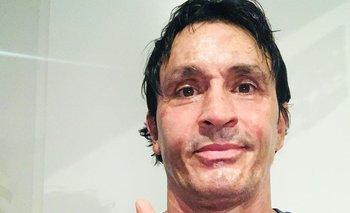 Sebastián Estevanez rompió el silencio tras su trágico accidente | Farándula