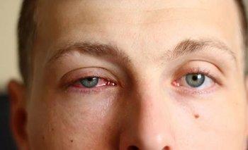 Qué es la conjuntivitis, sus síntomas y cuáles son sus causas | Salud