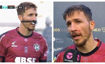 Los memes por el vendaje insólito de un jugador de Central Córdoba | Fútbol argentino