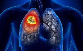 Día internacional contra el cáncer de pulmón: ¿cómo se previene? | Salud