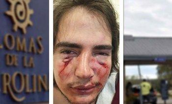 Acusan al hijo de un expuma de atacar en patota a un joven | Rugbiers violentos